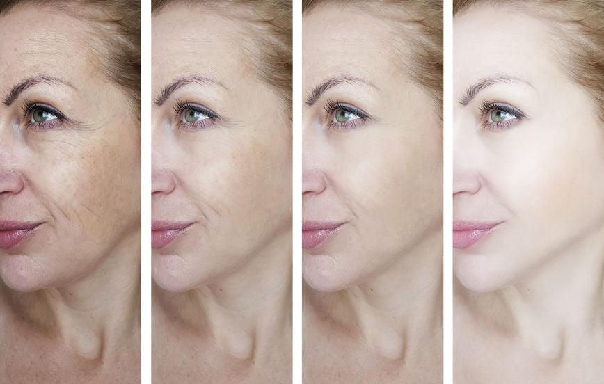 Saffron Prevents Premature Aging Of The Skin